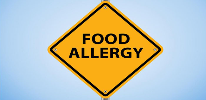 Properly serving food truck customers with food allergies forumfinder Images